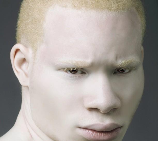 albino black guys