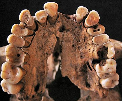 Prehistoric Moroccan Teeth Prove Stone Age Hunters Had 'Rotten' Oral Health